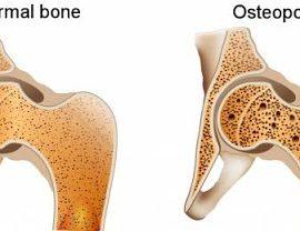 osteoporosis-pengeroposan-tulang