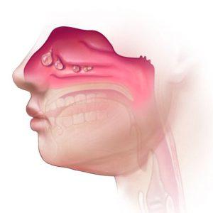 polip-hidung