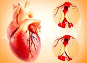 penyakit-jantung-koroner